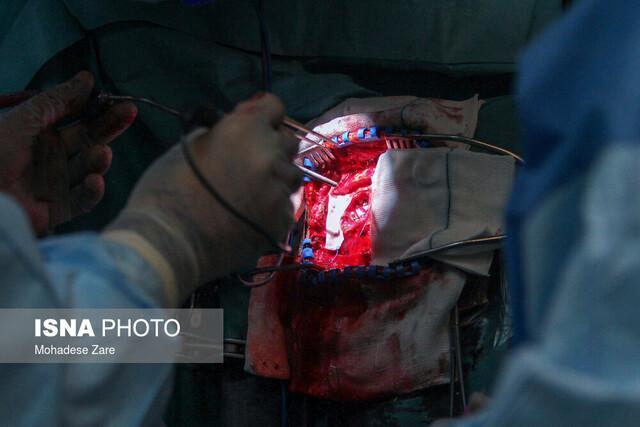 شروع اولین جراحی کاشت ساقه مغز در شیراز